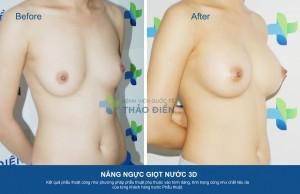 NangNguc3D-DuongNach285cc-01