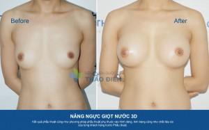 NangNguc3D-DuongNach285cc-02