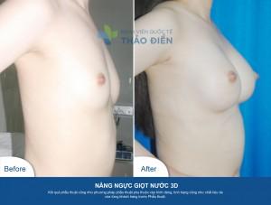 NangNguc3D-NTV285cc-02